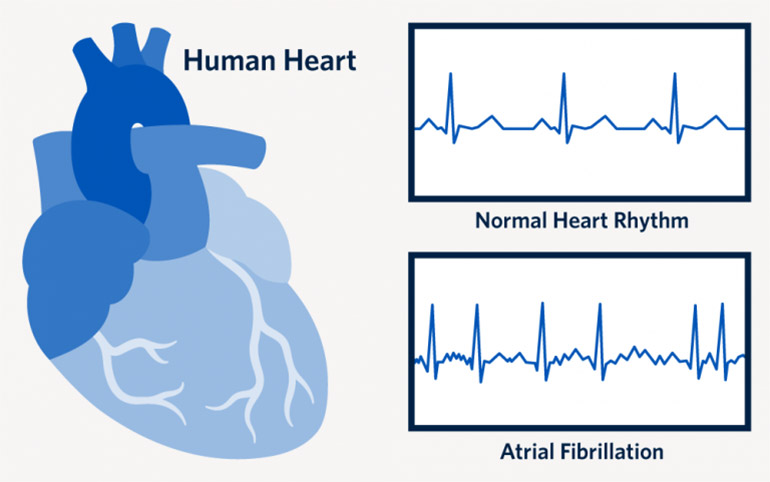 Atrial fibrillation is the most commonly diagnosed arrhythmia in the world. Despite that, many women do not understand the pre-diagnosis symptoms and tend to ignore them.
